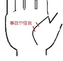 生命線事故や怪我.jpg